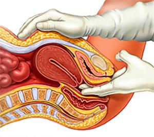 endometriozis tanısı
